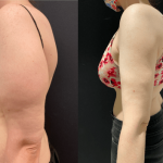 nps-before-after-arms-lipo