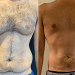 nps-before-after-male-chest-waist-9.16-min