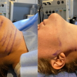 nps-before-after-neck-lipo-min