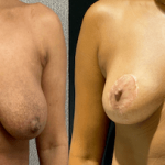 nps-breast-reduction