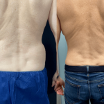 nps-male-waist-before-after