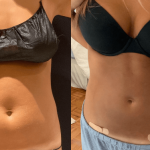nps_abdomen-before-after