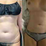 nps_before-after-coolsculpting-revision-min