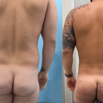 nps_before-after-male-bbl-min