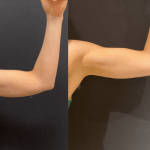 nps_before-after-male-female-arms