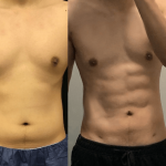 nps_before-after-male-waist