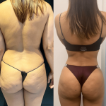 nps_dr-funderburk-BBL-lipo360-before-after-min