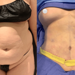 nps_dr-funderburk-abdominoplasty-before-after