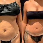nps_dr-funderburk-abdominoplasty-before-after