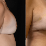 nps_dr-funderburk-breast revision-before-after-min
