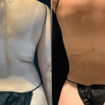 nps_dr-funderburk-lipo-360-before-after