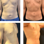 nps_dr-funderburk-male-lipo-360-before-after