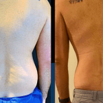 nps_dr-funderburk-lipo-360-before-after-2-min-min