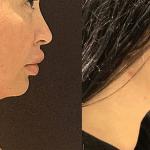 nps_dr-funderburk-neck-before-after