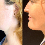 nps_dr-funderburk-neck-lipo-before-after