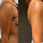 nps_before-after-arms-11.15-min