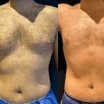nps_before-after-male-chest