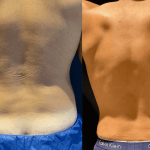 nps_before-after-male-waist-11.19-min