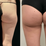nps_before-after-thighs
