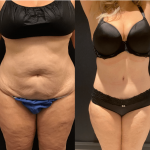 nps_before-after-tummy-tuck-11.15-min