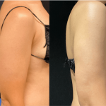 nps_before-after-arm-lipo