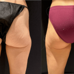 nps_before-after-outer-thigh-lipo