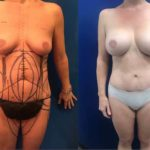 BA-Breast-MommyMakeover_09192018-min