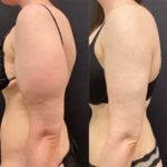 BA-FEMALE-ARMS-LIPOSUCTION_02.11.2020-1