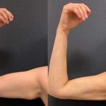 BA-FEMALE-MINI-ARM-LIFT_02.27.2020