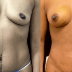 NPS_before-after-breast-boost-min