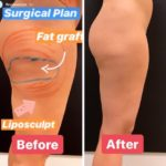 NPS_coolsculpting-revision-before-after-2.17-3