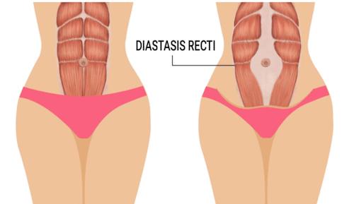 NPS_diastasis-recti