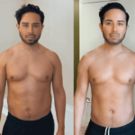 NPS_funderburk-before-after-male-hd-lipo-2.16-1-min