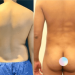 NPS_funderburk-before-after-male-hd-lipo-2.16-3-min