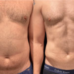 NPS_funderburk-before-after-male-hd-lipo-2.16-4-min
