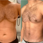NPS_funderburk-before-after-male-hd-lipo-2.16-5-min