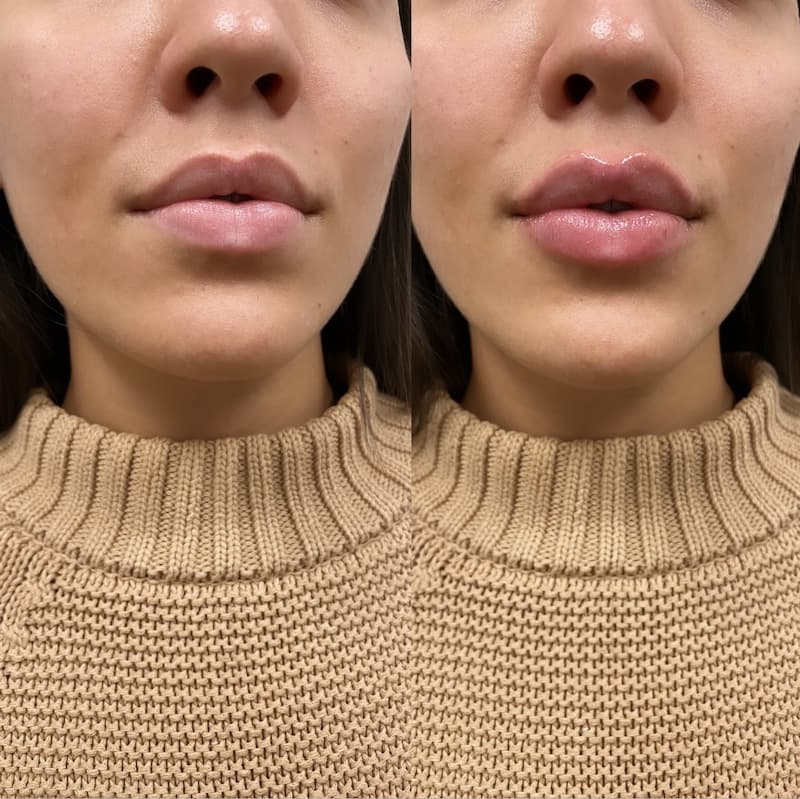 NPS_lip-fillers-before-after-2.17-7-min