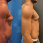 before-after-gynecomastia-min