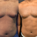 male-chest