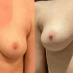 nps_before-after-breast-boost-1.27-min