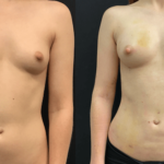 nps_before-after-breast-boost-min-1