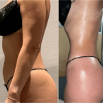 nps_before-after-lipo-360-2.8-min