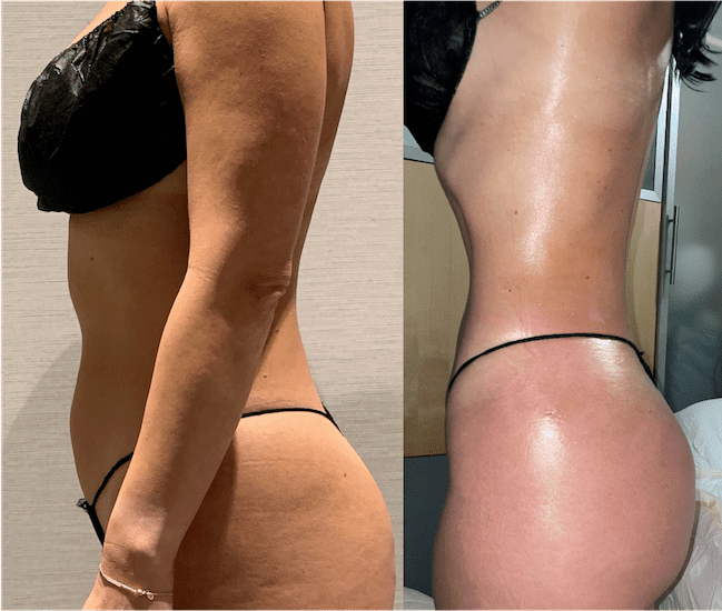 nps_before-after-lipo-360-2.8