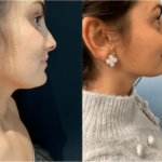 nps_before-after-neck-2.23-min
