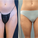 nps_before-after-thigh-2.23-min