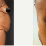 NPS_funderburk-before-after-abdominoplasty-2.16-1-min