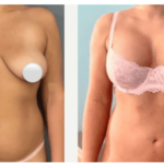 NPS_funderburk-before-after-breast-augmentation-2.16-1-min
