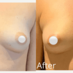 NPS_funderburk-before-after-breast-augmentation-2.16-2-min