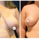 NPS_funderburk-before-after-breast-reduction-2.16-1-min