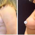 NPS_funderburk-before-after-breast-reduction-2.16-2-min